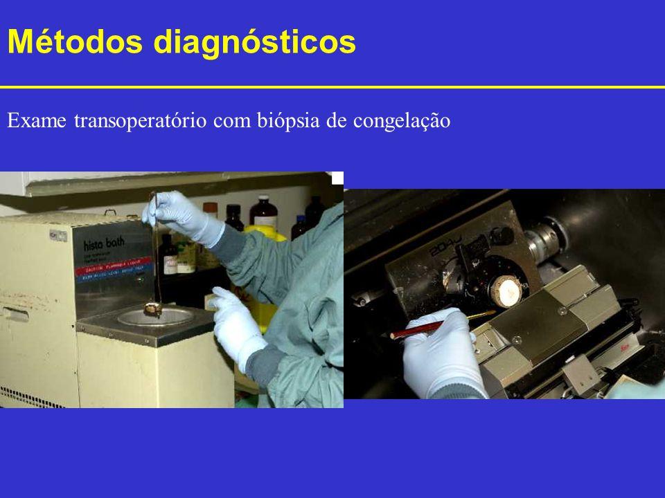 Métodos diagnósticos Exame transoperatório com biópsia de congelação
