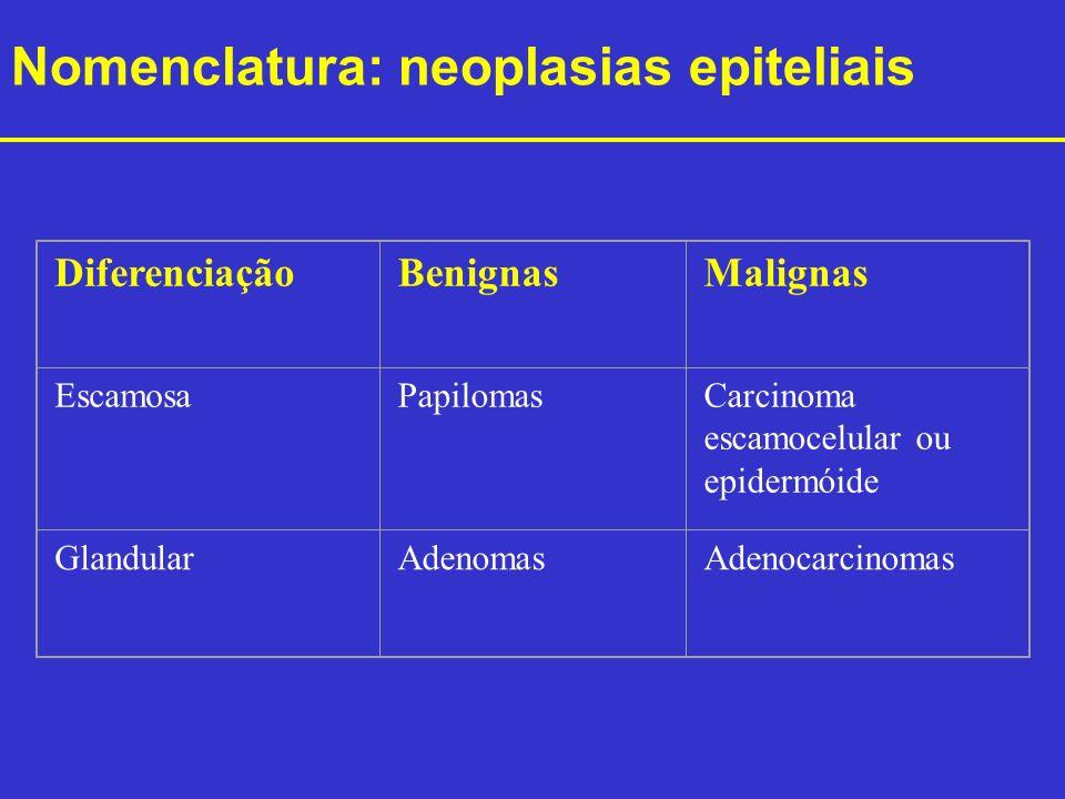 Nomenclatura: neoplasias epiteliais