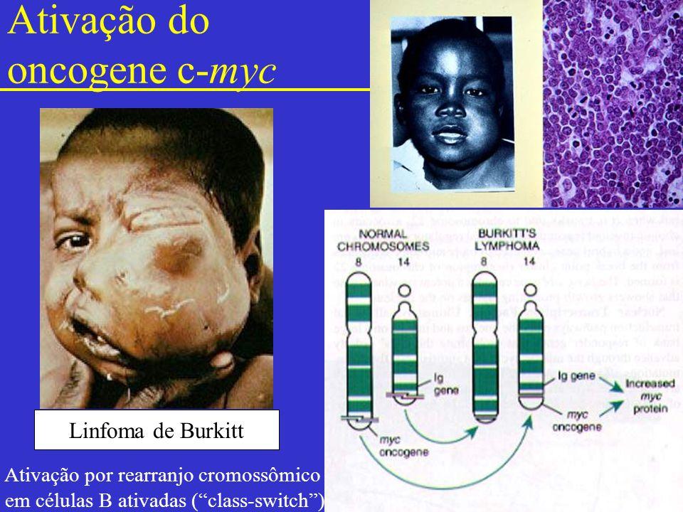 Ativação do oncogene c-myc