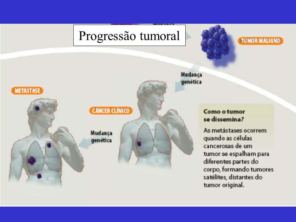 Progressão tumoral