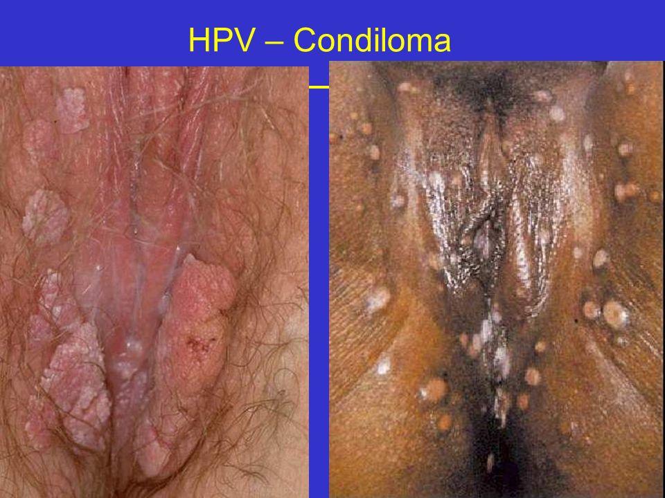HPV – Condiloma