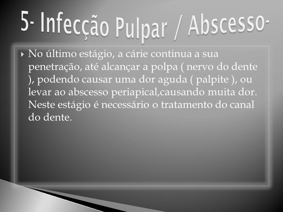 5- Infecção Pulpar / Abscesso-