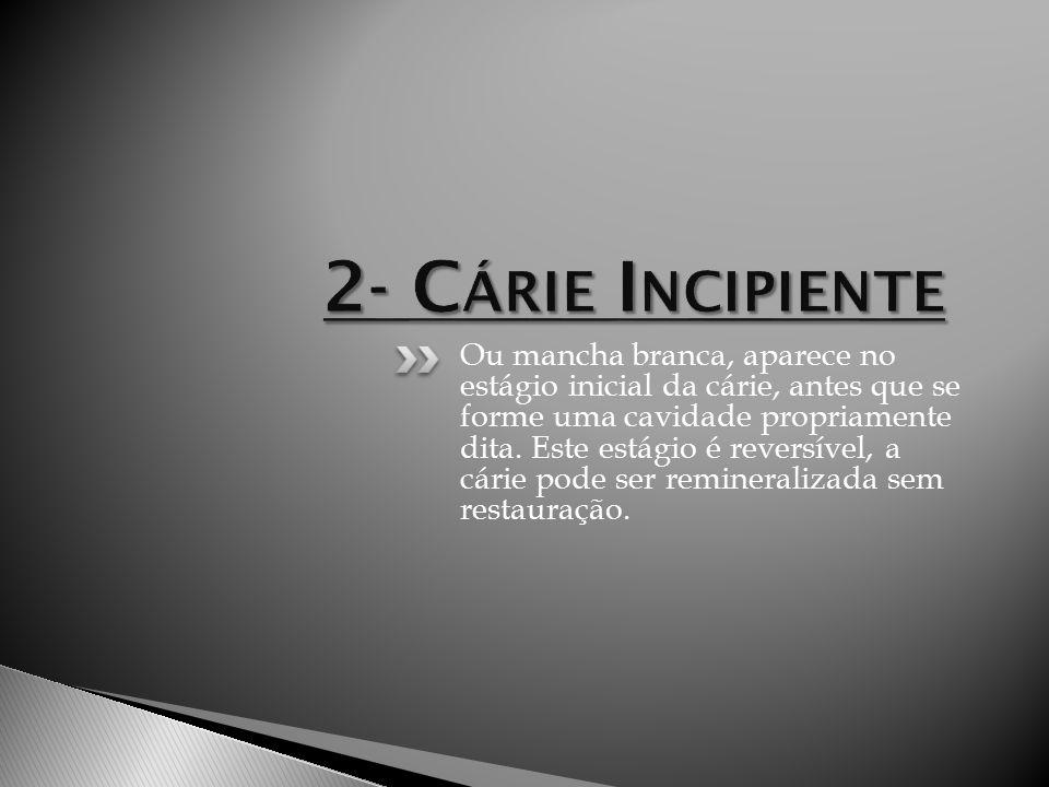 2- Cárie Incipiente