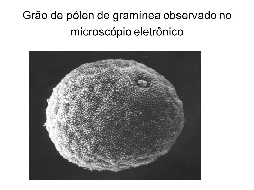 Grão de pólen de gramínea observado no microscópio eletrônico