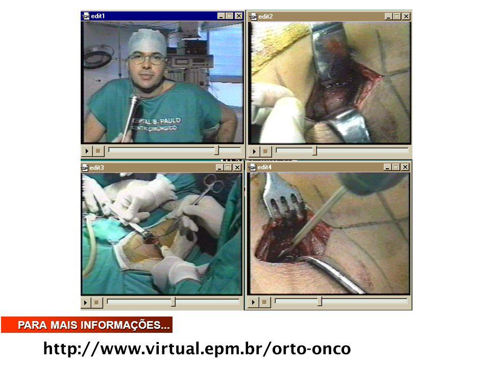 PARA MAIS INFORMAÇÕES... http://www.virtual.epm.br/orto-onco
