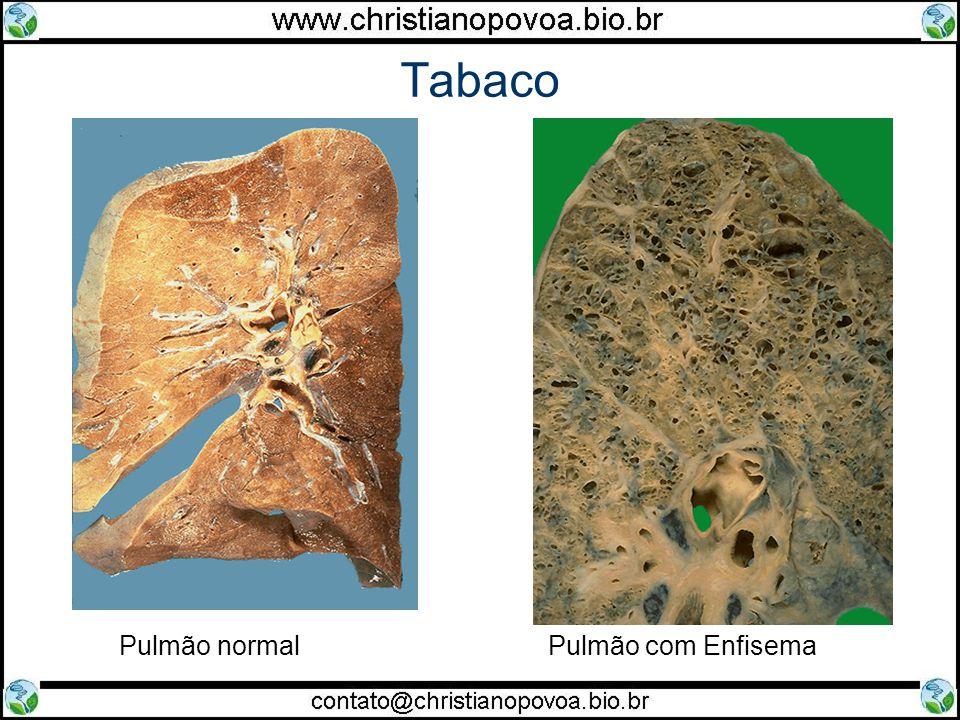 Tabaco Pulmão normal Pulmão com Enfisema