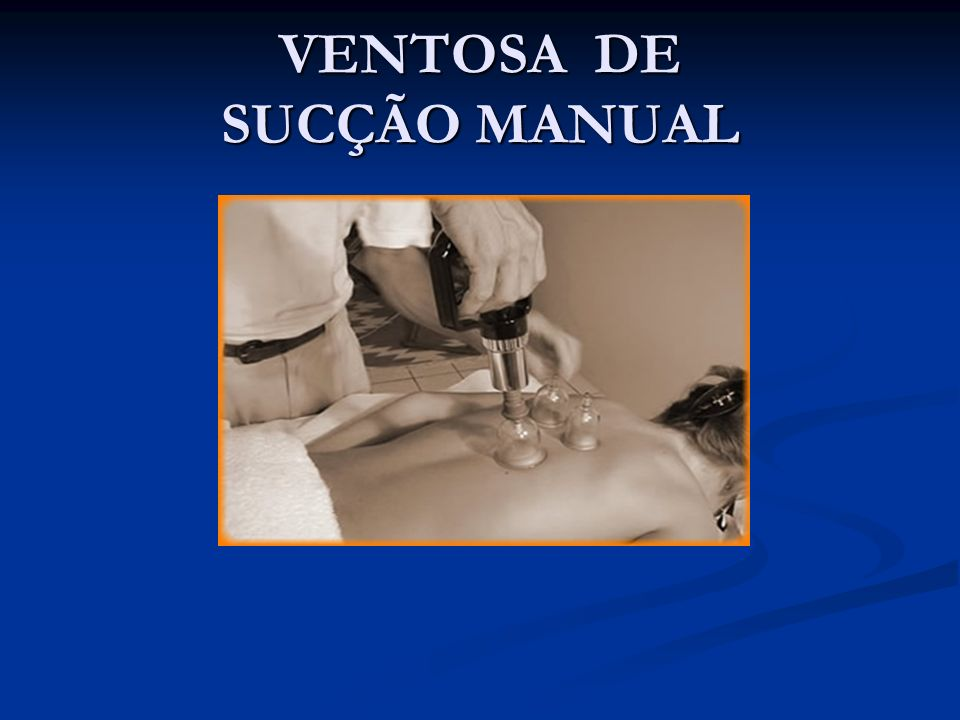 VENTOSA DE SUCÇÃO MANUAL