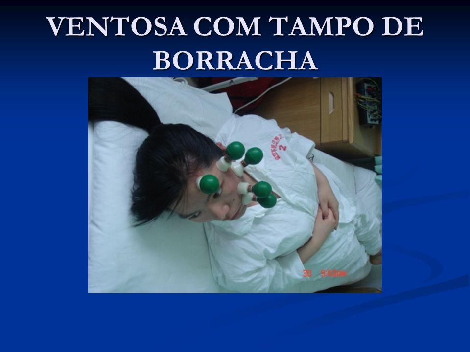 VENTOSA COM TAMPO DE BORRACHA