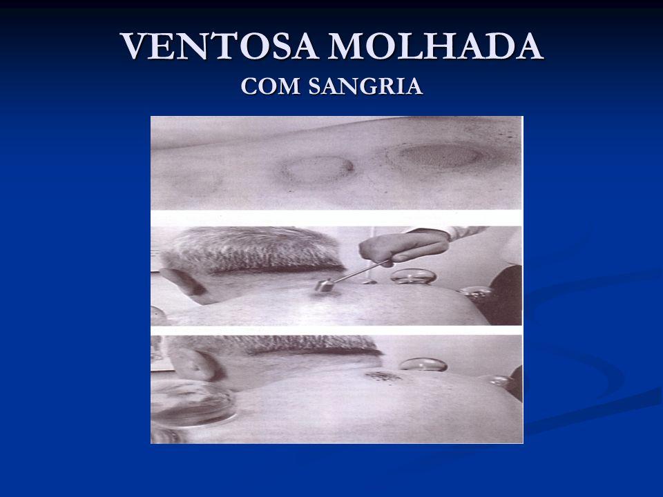 VENTOSA MOLHADA COM SANGRIA