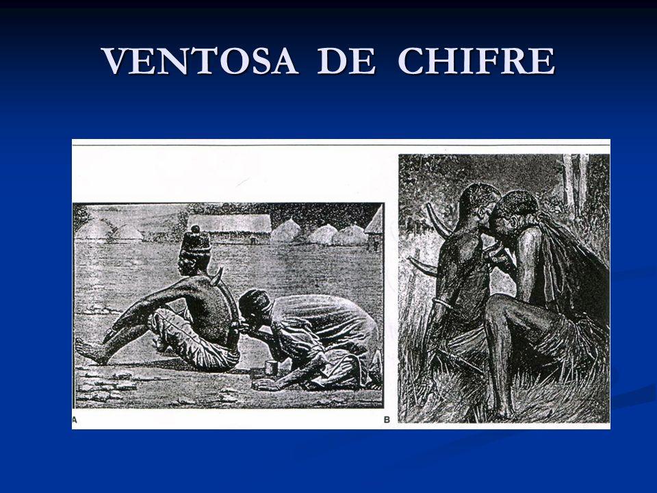 VENTOSA DE CHIFRE