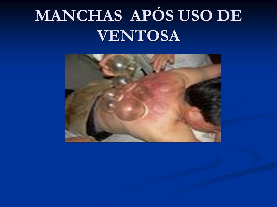 MANCHAS APÓS USO DE VENTOSA
