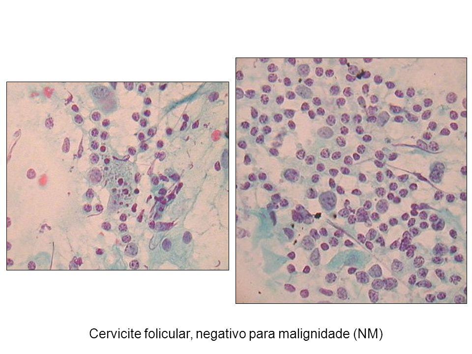 Cervicite folicular, negativo para malignidade (NM)