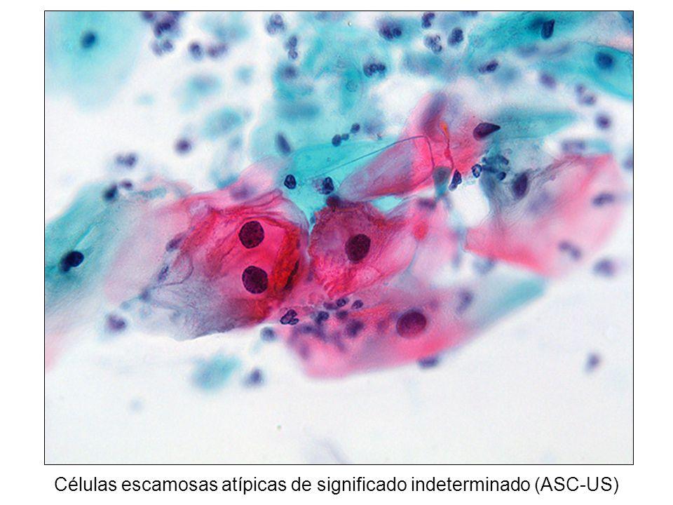 Células escamosas atípicas de significado indeterminado (ASC-US)