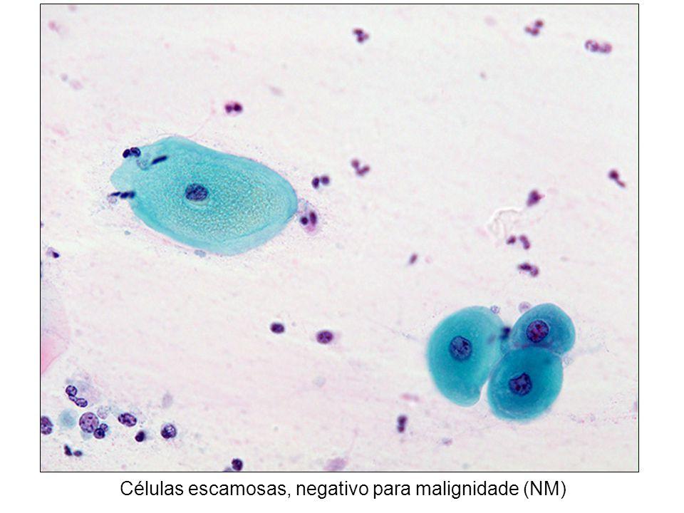 Células escamosas, negativo para malignidade (NM)