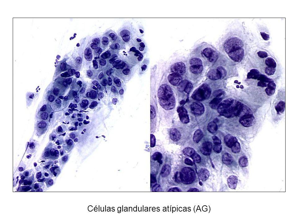Células glandulares atípicas (AG)