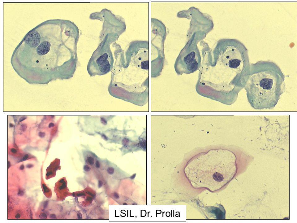 LSIL, Dr. Prolla
