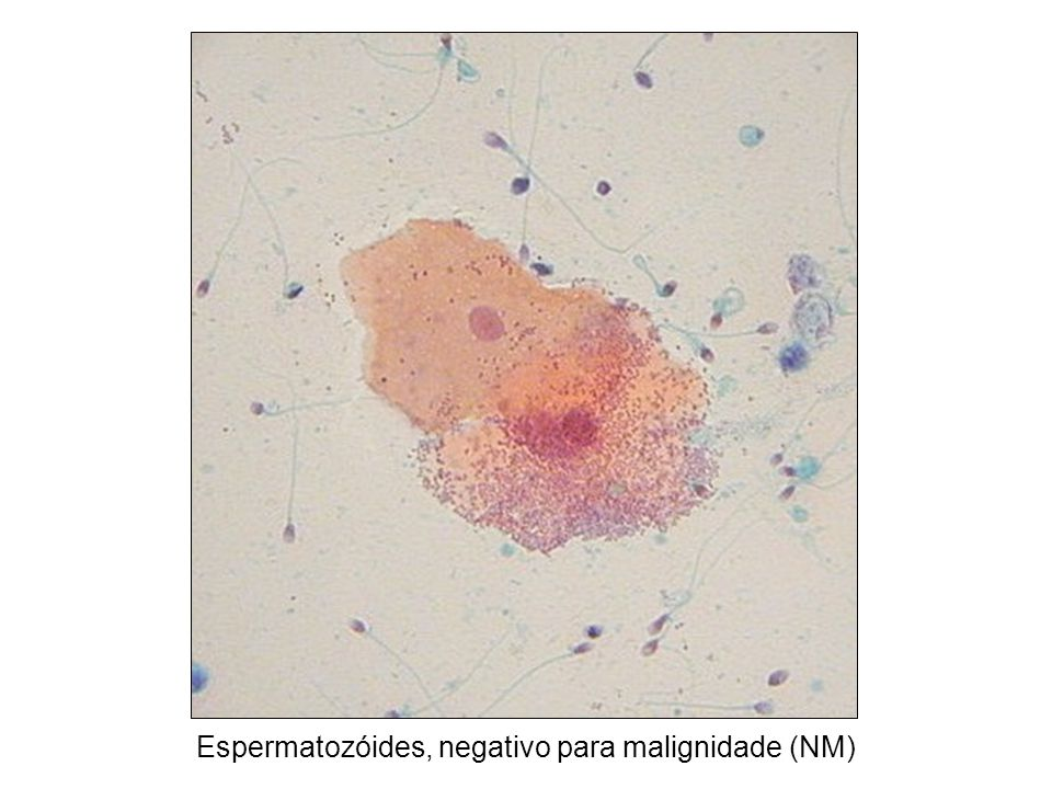 Espermatozóides, negativo para malignidade (NM)