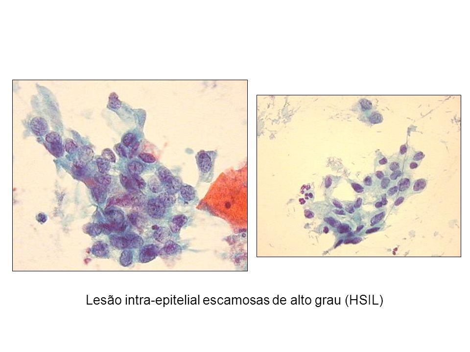 Lesão intra-epitelial escamosas de alto grau (HSIL)