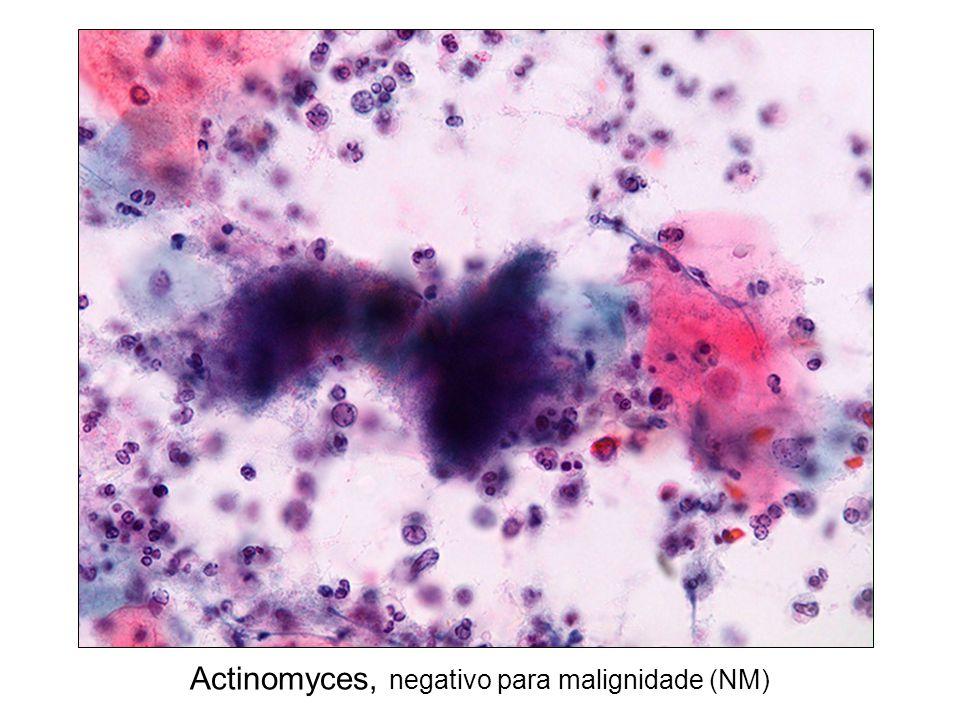 Actinomyces, negativo para malignidade (NM)