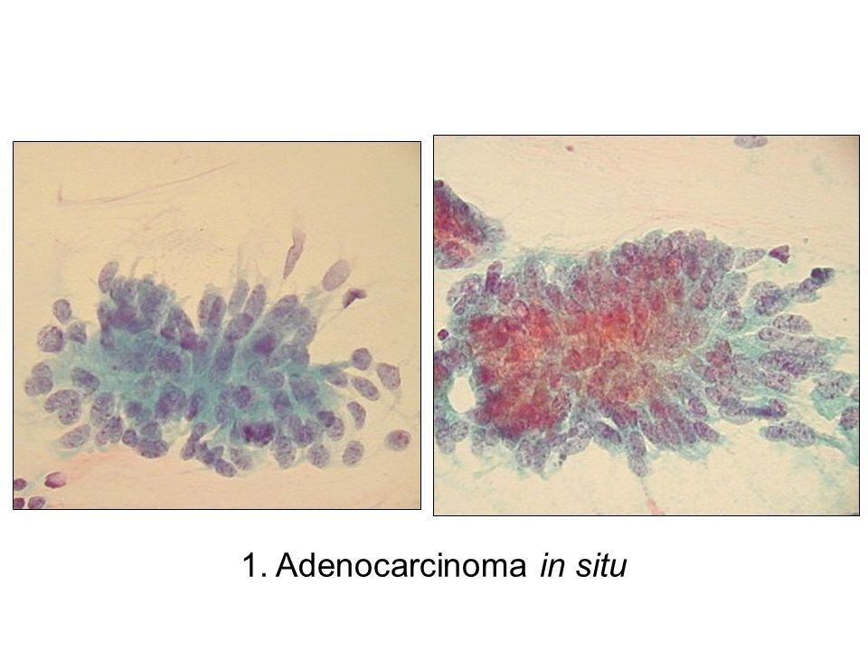 1. Adenocarcinoma in situ