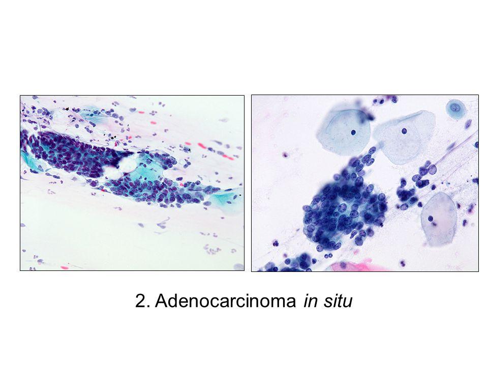 2. Adenocarcinoma in situ