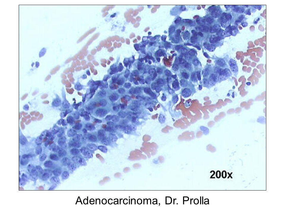 Adenocarcinoma, Dr. Prolla