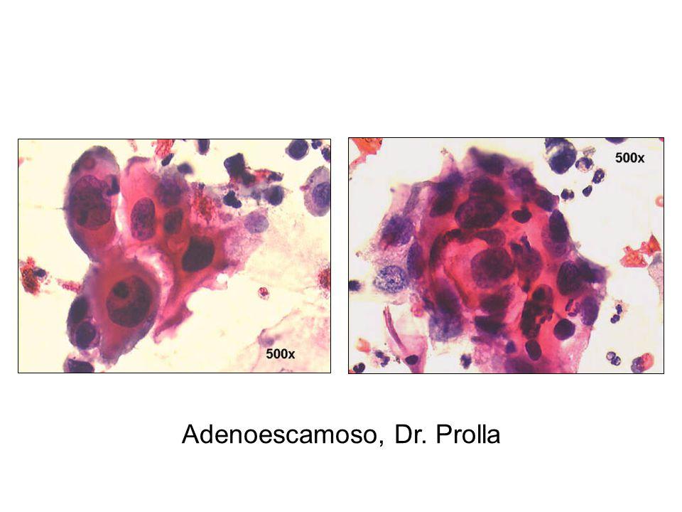 Adenoescamoso, Dr. Prolla