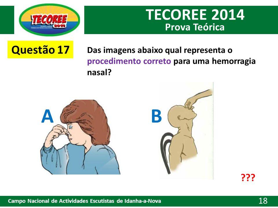 Questão 17 Das imagens abaixo qual representa o procedimento correto para uma hemorragia nasal A.