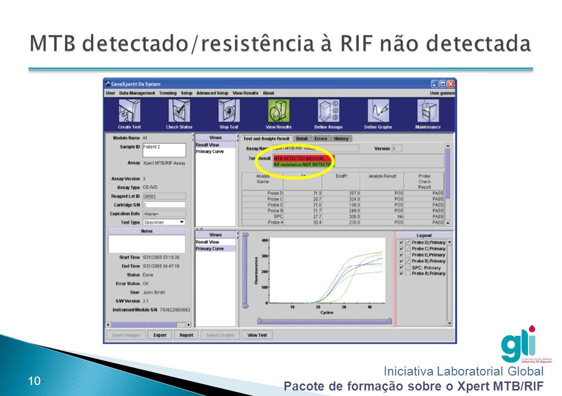 MTB detectado/resistência à RIF não detectada