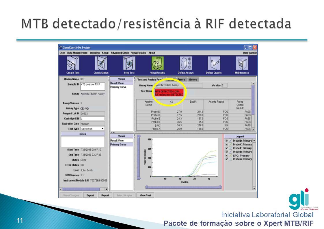 MTB detectado/resistência à RIF detectada