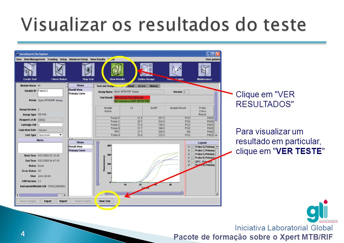 Visualizar os resultados do teste