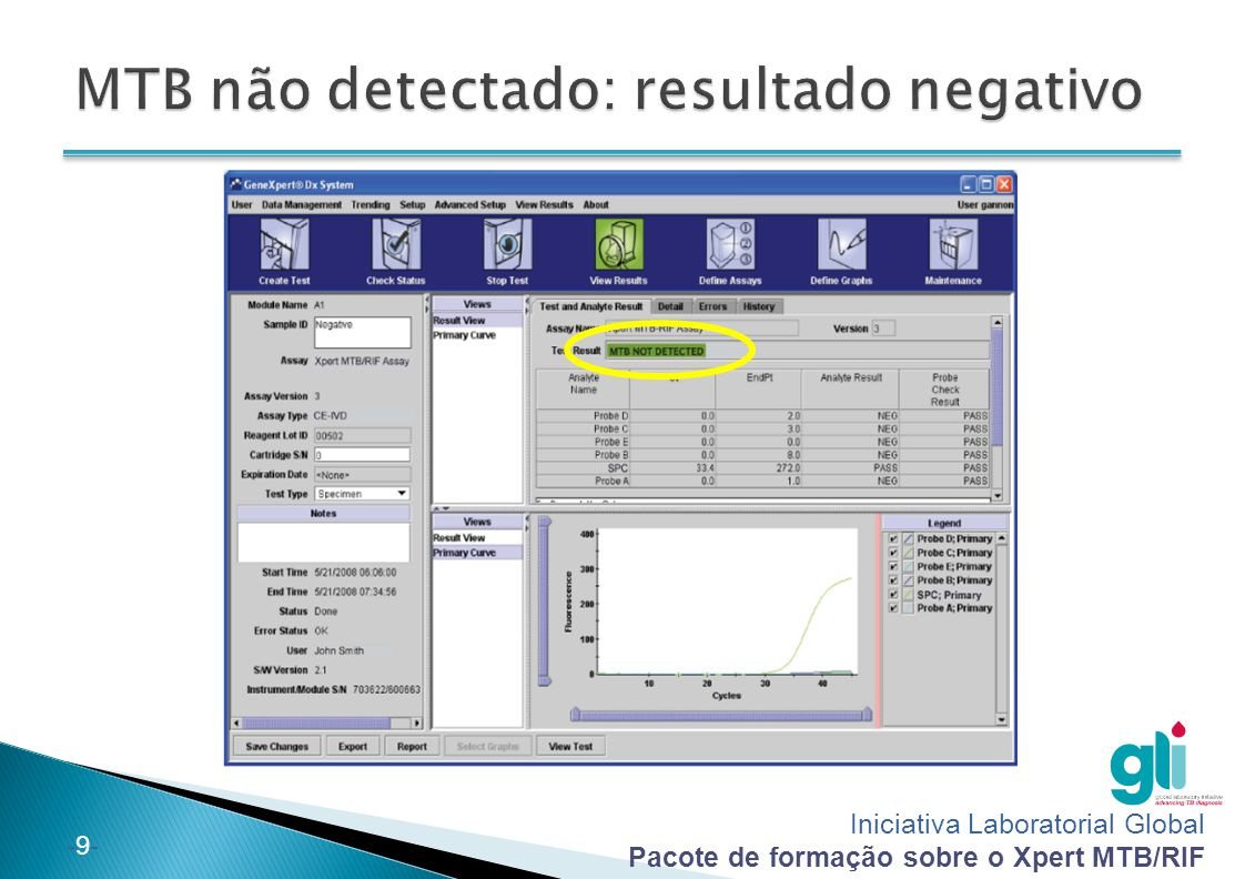 MTB não detectado: resultado negativo