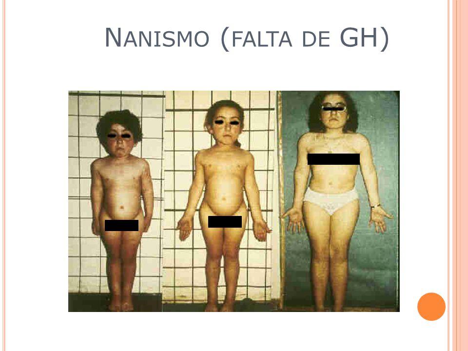 Nanismo (falta de GH)