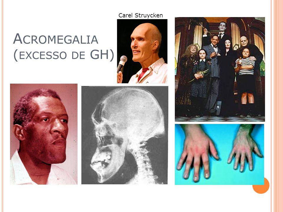 Acromegalia (excesso de GH)