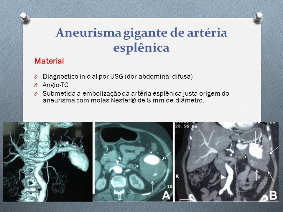Aneurisma gigante de artéria esplênica