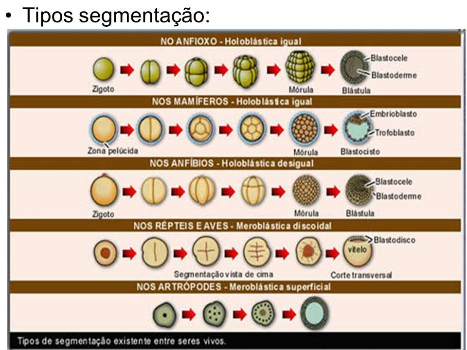 Tipos segmentação: