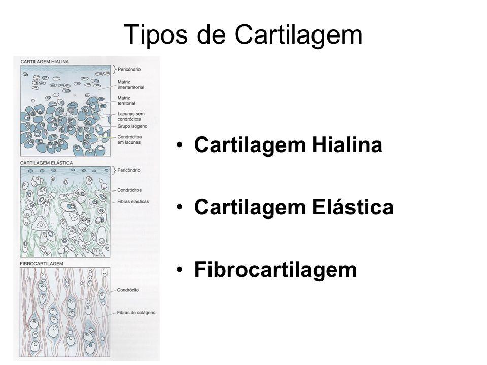 Tipos de Cartilagem Cartilagem Hialina Cartilagem Elástica