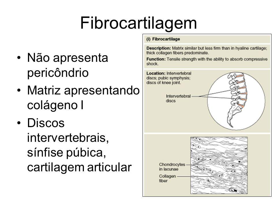 Fibrocartilagem Não apresenta pericôndrio