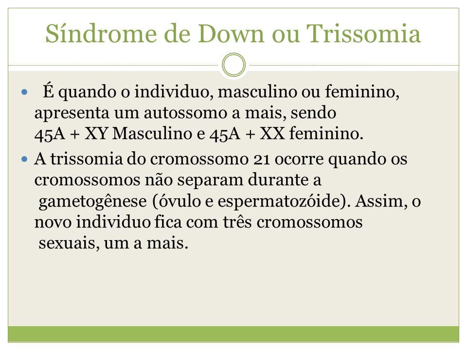Síndrome de Down ou Trissomia