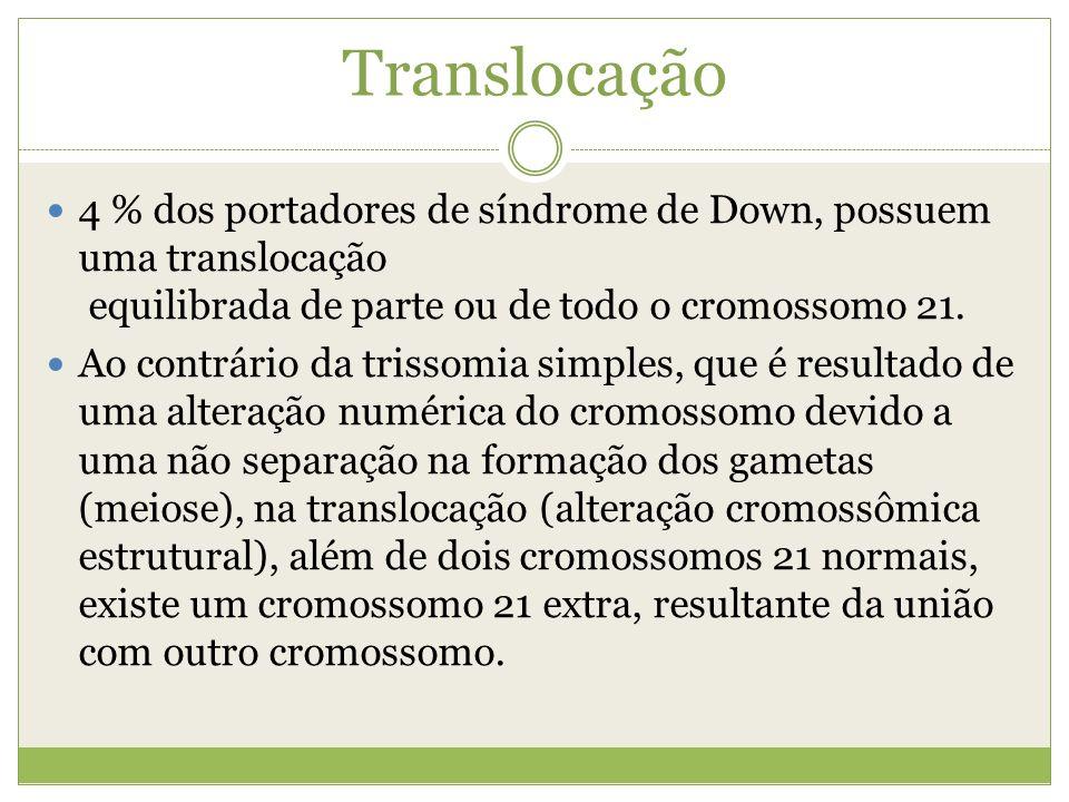 Translocação 4 % dos portadores de síndrome de Down, possuem uma translocação equilibrada de parte ou de todo o cromossomo 21.