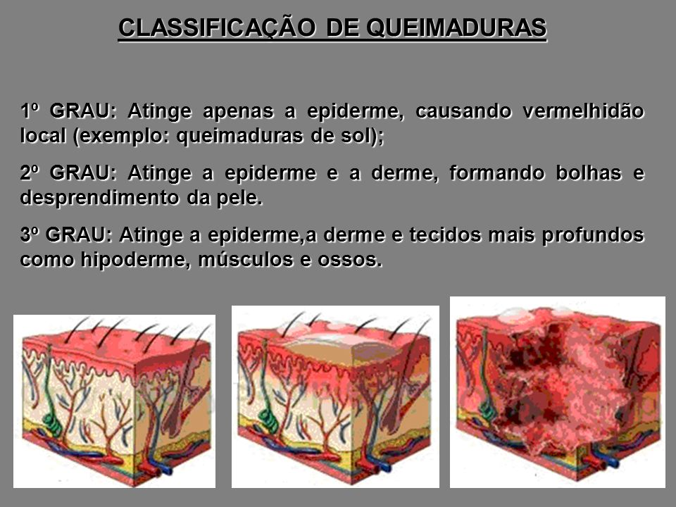 CLASSIFICAÇÃO DE QUEIMADURAS