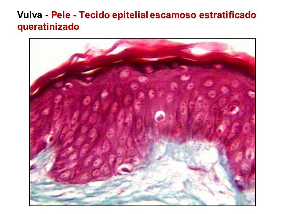 Vulva - Pele - Tecido epitelial escamoso estratificado queratinizado