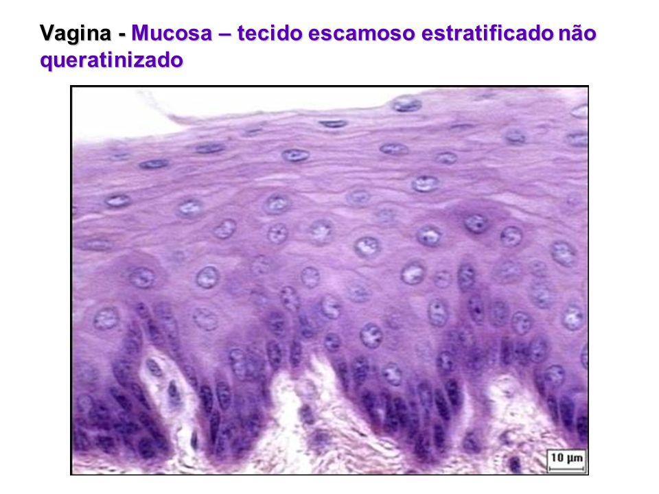 Vagina - Mucosa – tecido escamoso estratificado não queratinizado