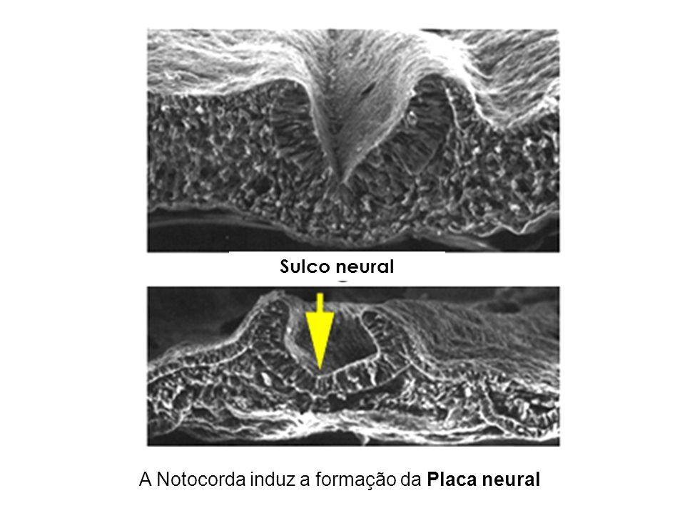 A Notocorda induz a formação da Placa neural