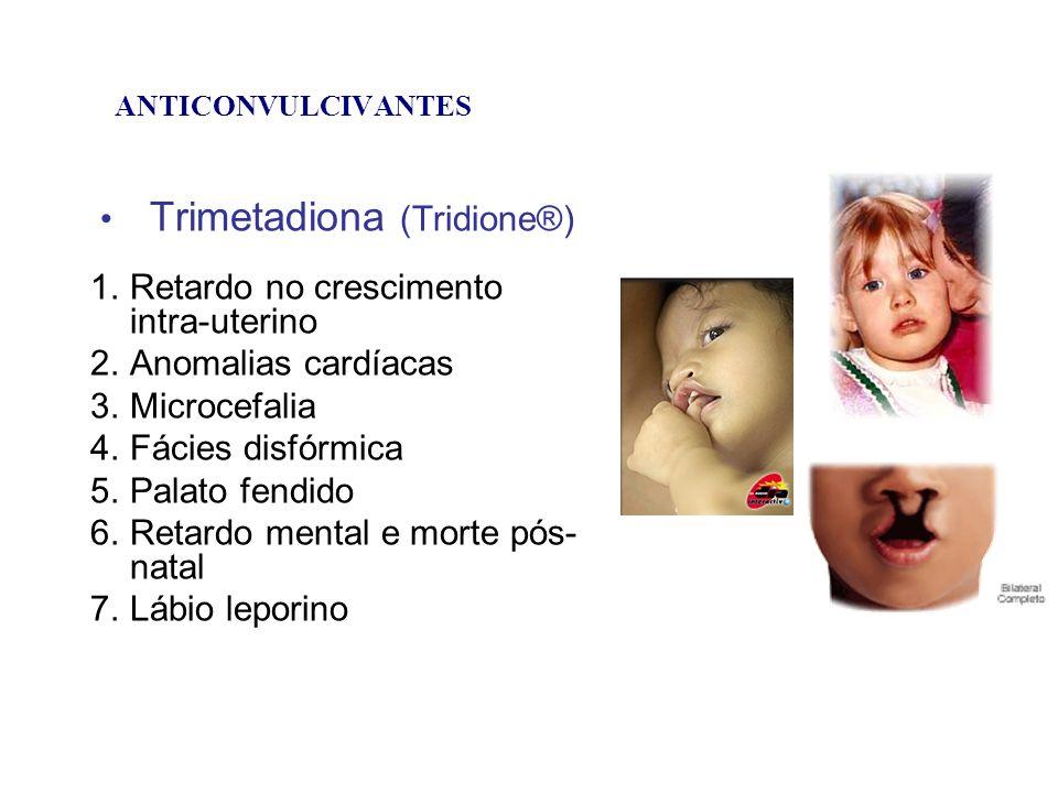 Trimetadiona (Tridione®)