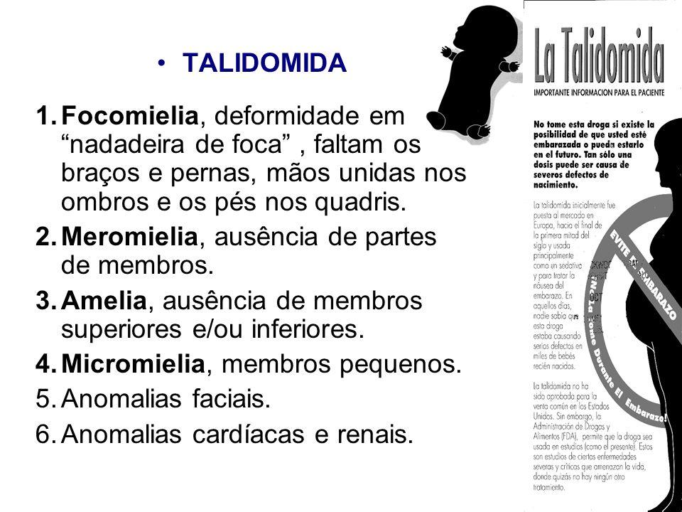 TALIDOMIDA Focomielia, deformidade em nadadeira de foca , faltam os braços e pernas, mãos unidas nos ombros e os pés nos quadris.