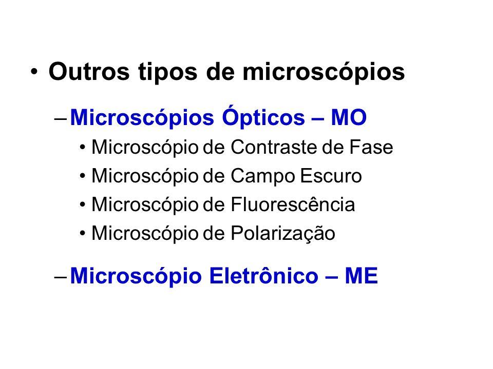 Outros tipos de microscópios