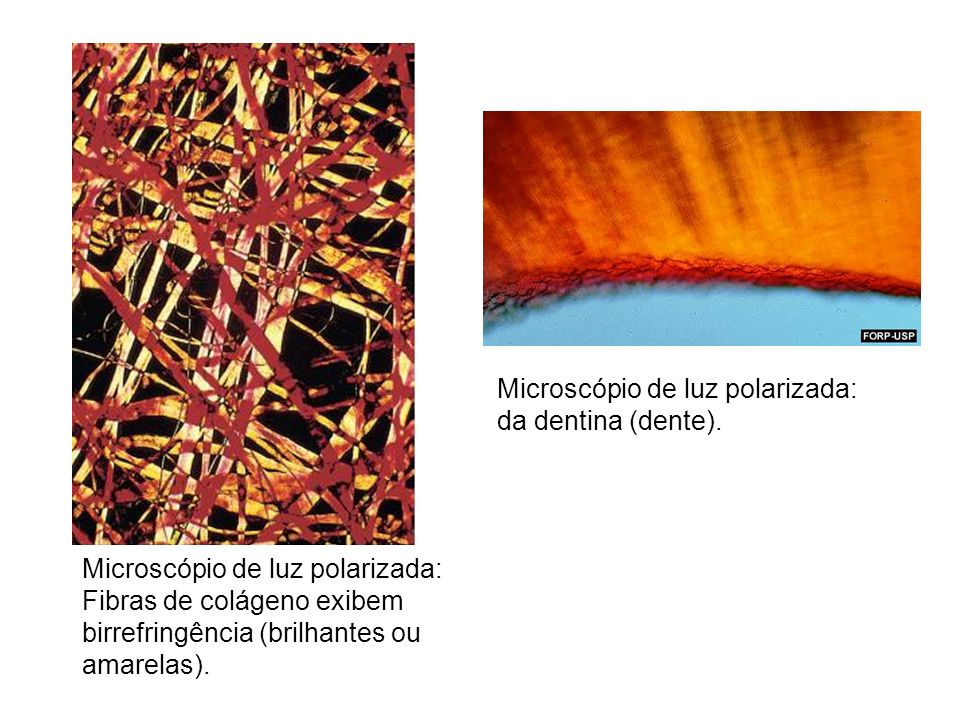 Microscópio de luz polarizada: da dentina (dente).