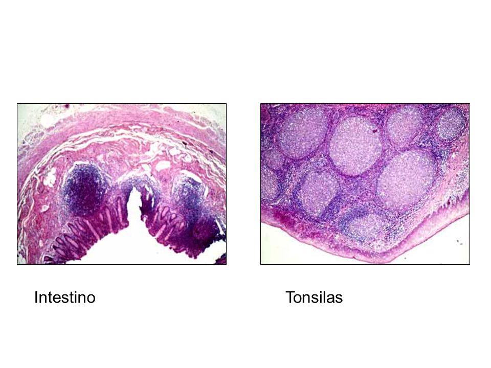 Intestino Tonsilas
