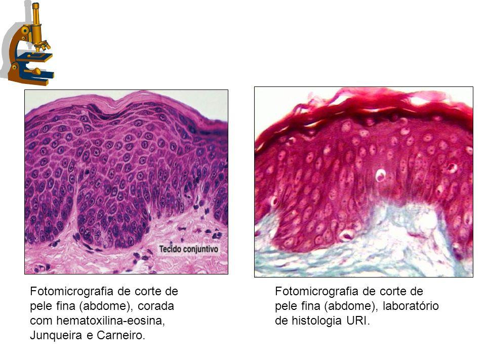 Fotomicrografia de corte de pele fina (abdome), corada com hematoxilina-eosina, Junqueira e Carneiro.